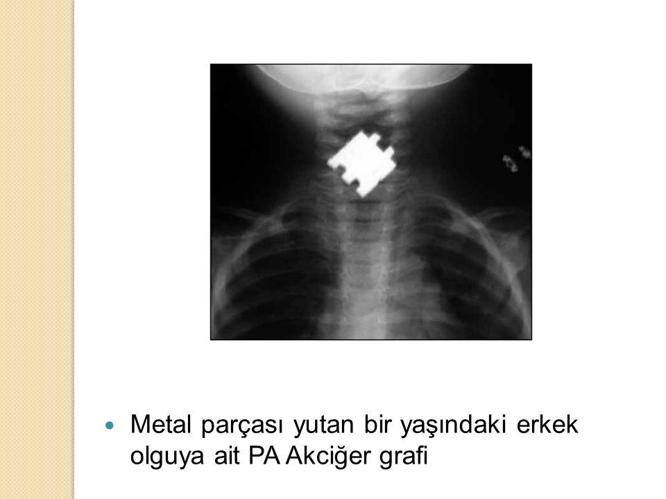 Metal parçası yutan bir yaşındaki erkek olguya ait PA Akciğer grafi
