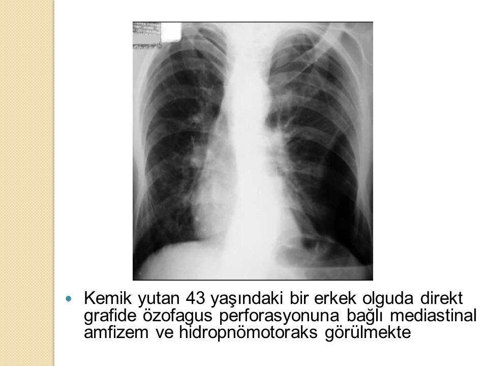 Kemik yutan 43 yaşındaki bir erkek olguda direkt grafide özofagus perforasyonuna bağlı mediastinal amfizem ve hidropnömotoraks görülmekte