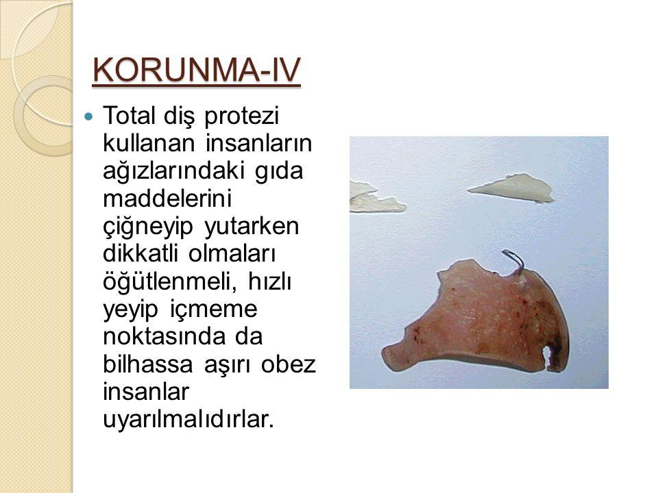 KORUNMA-IV