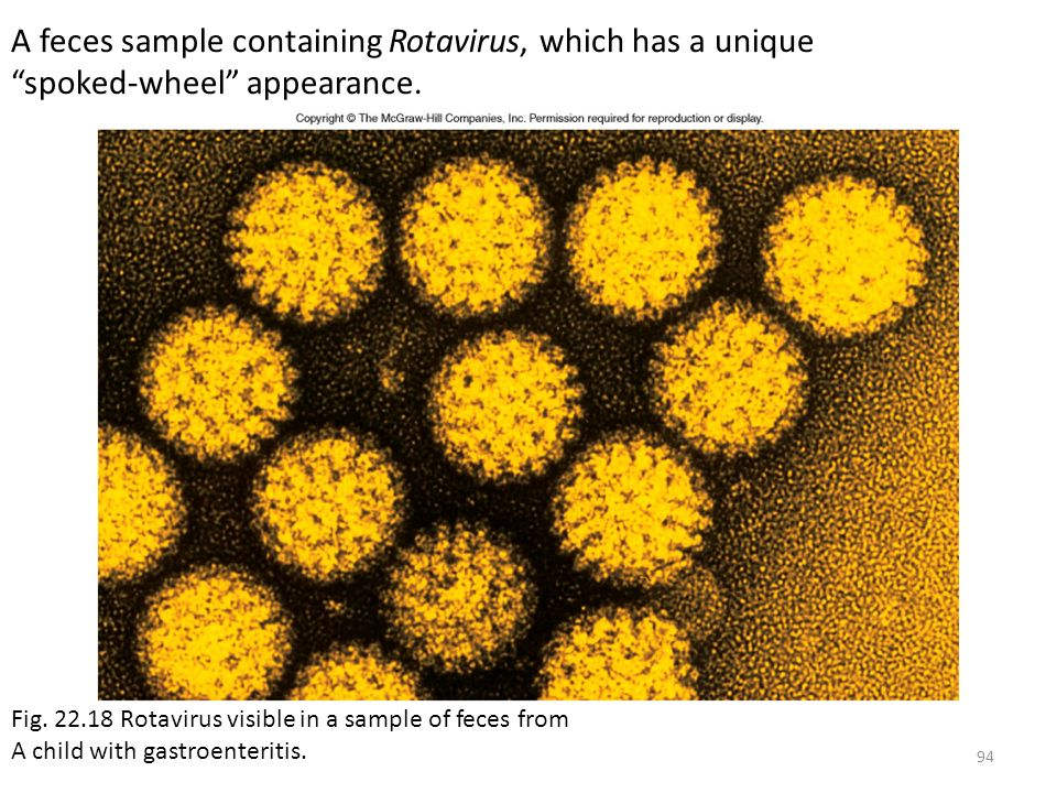 A feces sample containing Rotavirus, which has a unique spoked-wheel appearance.