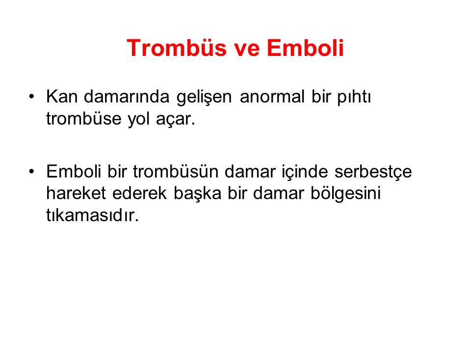 Trombüs ve Emboli Kan damarında gelişen anormal bir pıhtı trombüse yol açar.