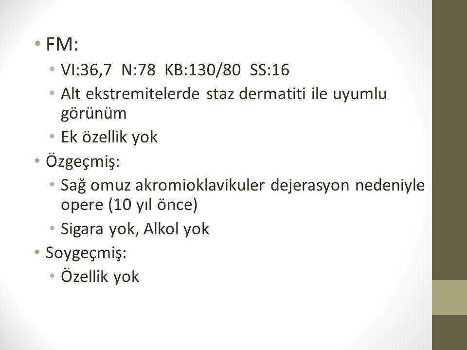 FM: VI:36,7 N:78 KB:130/80 SS:16. Alt ekstremitelerde staz dermatiti ile uyumlu görünüm. Ek özellik yok.
