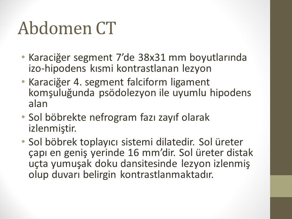 Abdomen CT Karaciğer segment 7'de 38x31 mm boyutlarında izo-hipodens kısmi kontrastlanan lezyon.
