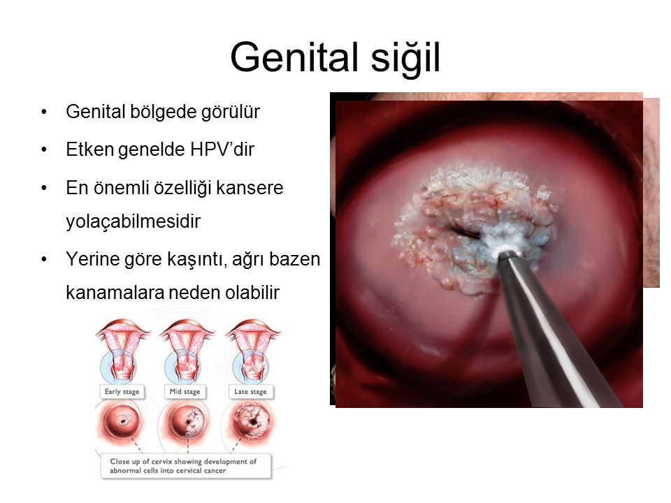 Genital siğil Genital bölgede görülür Etken genelde HPV'dir