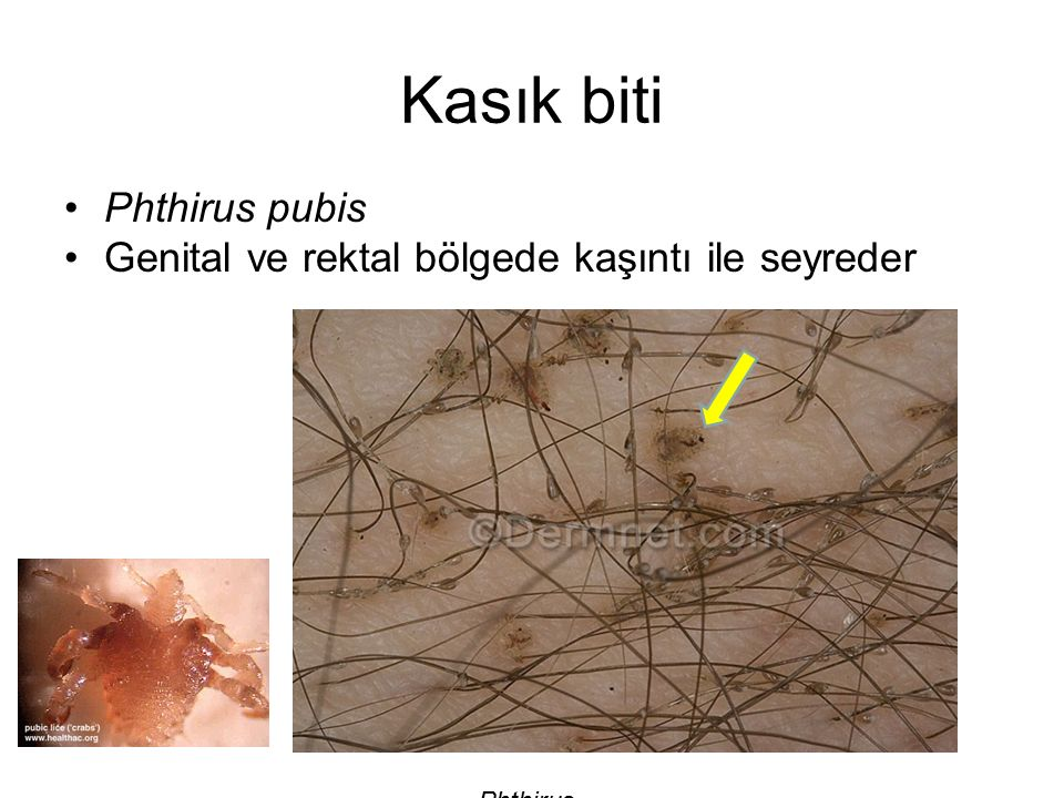Kasık biti Phthirus pubis
