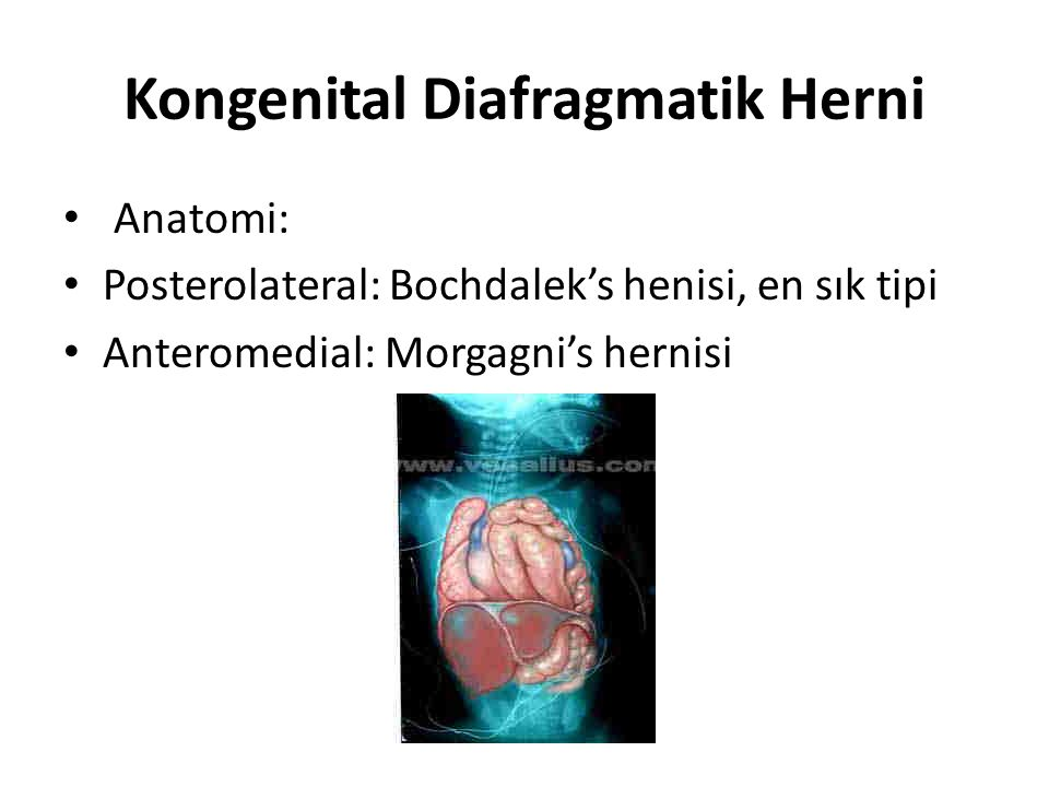 Kongenital Diafragmatik Herni