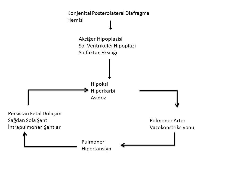 Konjenital Posterolateral Diafragma Hernisi