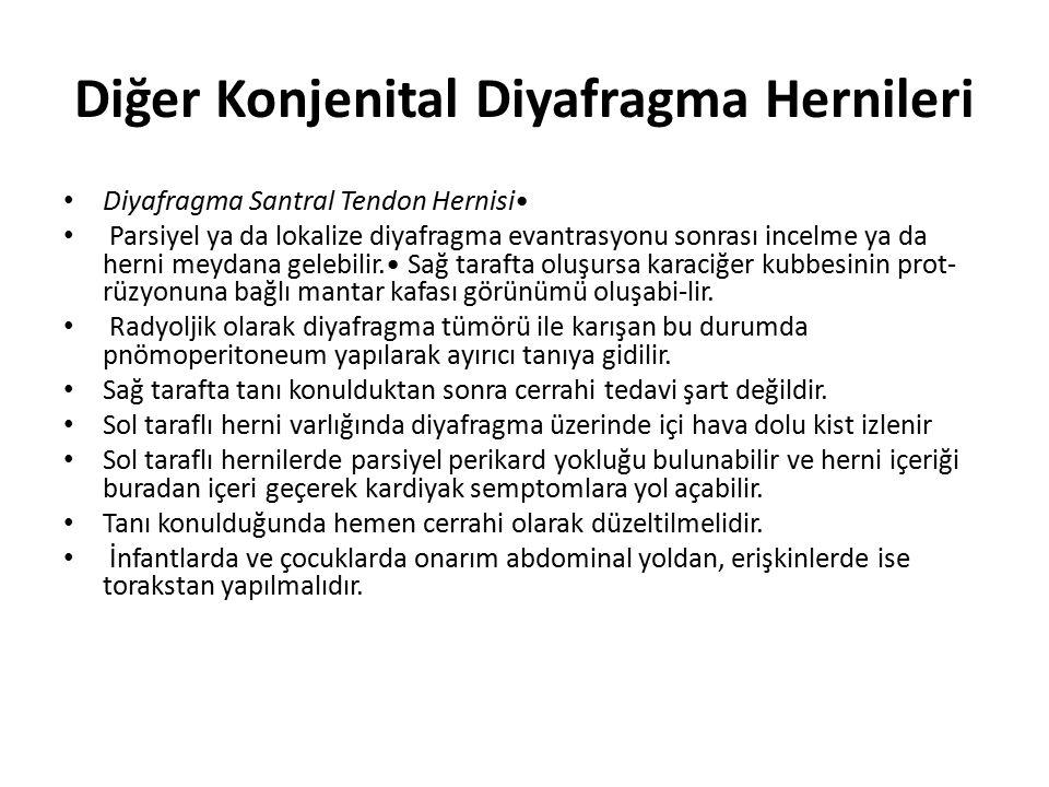 Diğer Konjenital Diyafragma Hernileri