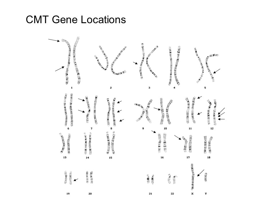 CMT Gene Locations