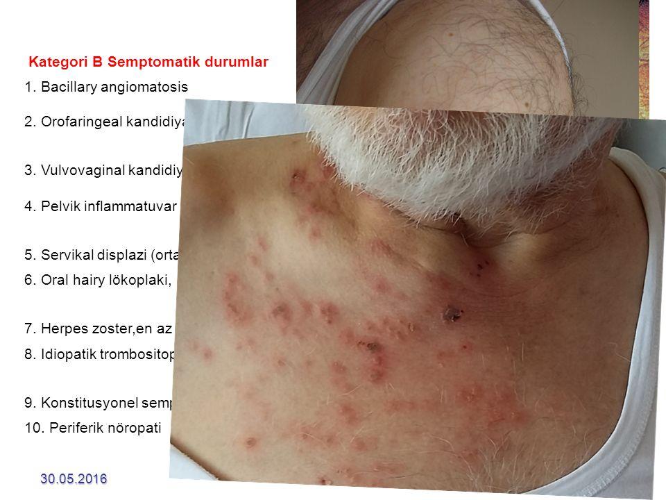 Kategori B Semptomatik durumlar 1. Bacillary angiomatosis