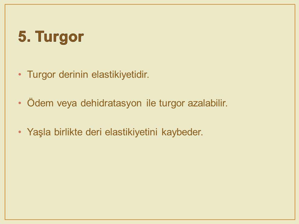 5. Turgor Turgor derinin elastikiyetidir.