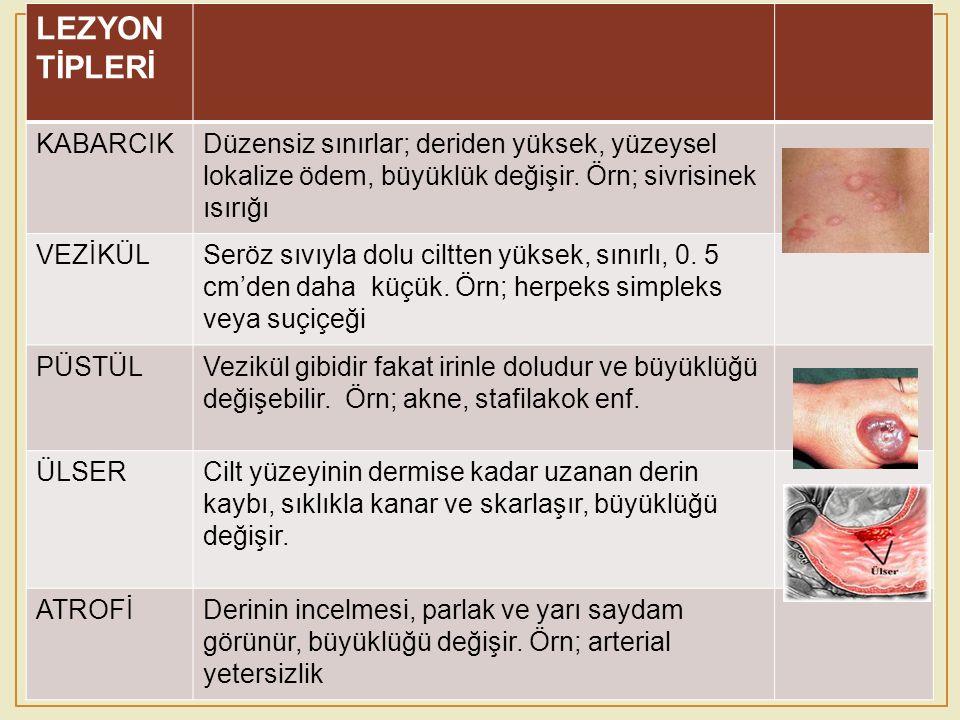 LEZYON TİPLERİ KABARCIK