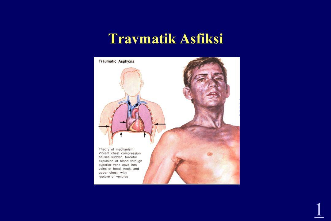 Travmatik Asfiksi 1