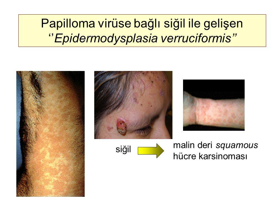 Papilloma virüse bağlı siğil ile gelişen ''Epidermodysplasia verruciformis''