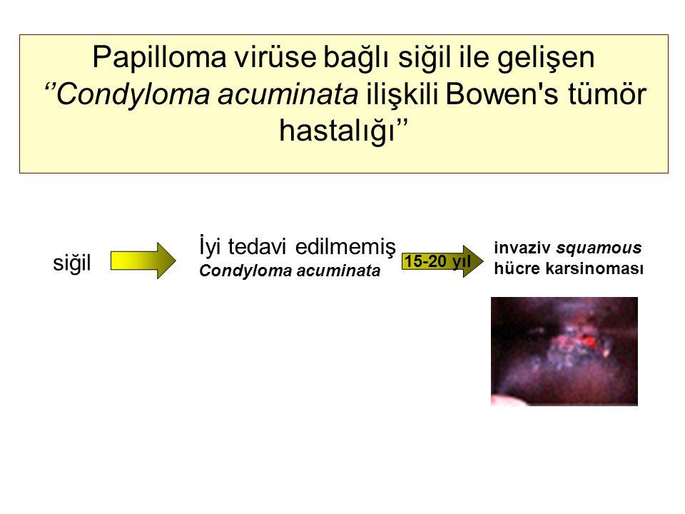 Papilloma virüse bağlı siğil ile gelişen ''Condyloma acuminata ilişkili Bowen s tümör hastalığı''