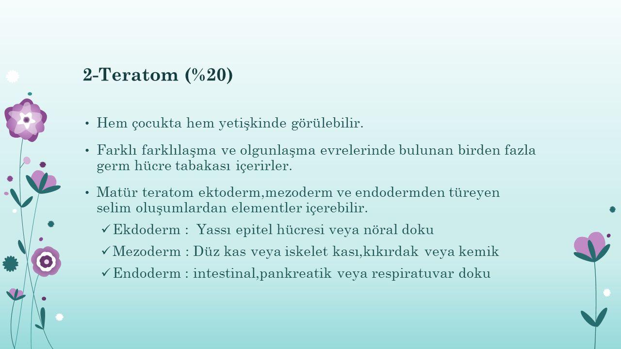 2-Teratom (%20) Hem çocukta hem yetişkinde görülebilir.