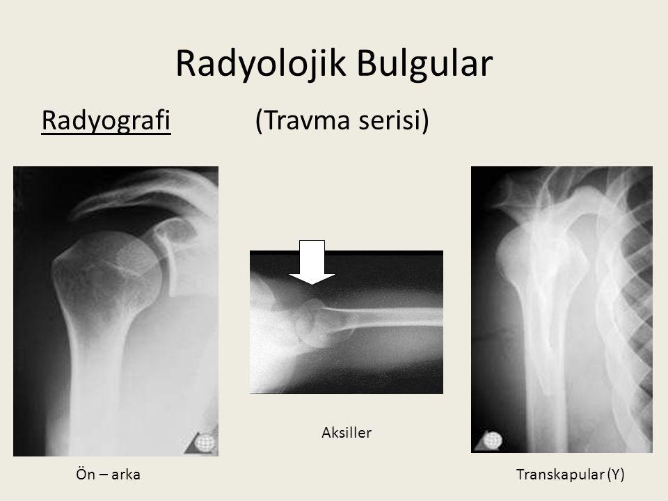 Radyolojik Bulgular Radyografi (Travma serisi) Aksiller Ön – arka