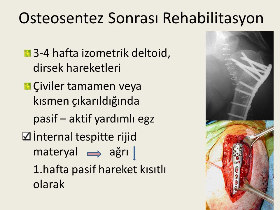 Osteosentez Sonrası Rehabilitasyon