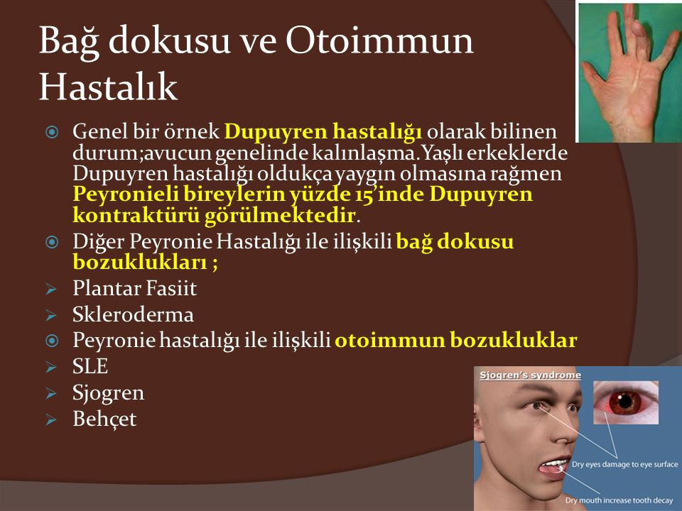 Bağ dokusu ve Otoimmun Hastalık