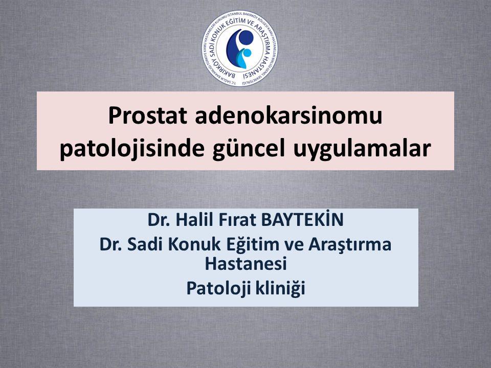 Prostat adenokarsinomu patolojisinde güncel uygulamalar