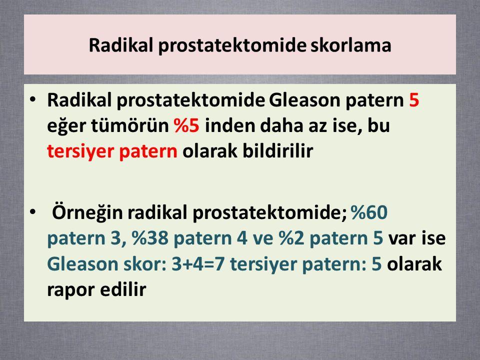 Radikal prostatektomide skorlama