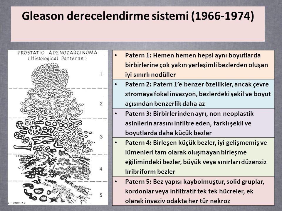 Gleason derecelendirme sistemi (1966-1974)