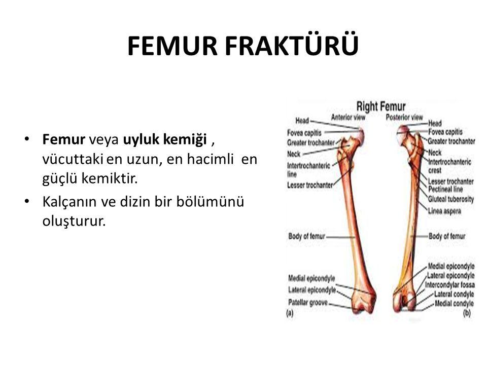 FEMUR FRAKTÜRÜ Femur veya uyluk kemiği , vücuttaki en uzun, en hacimli en güçlü kemiktir.