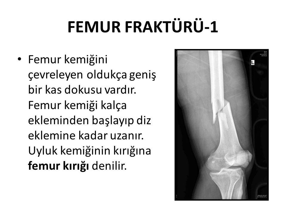 FEMUR FRAKTÜRÜ-1