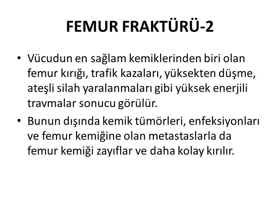 FEMUR FRAKTÜRÜ-2