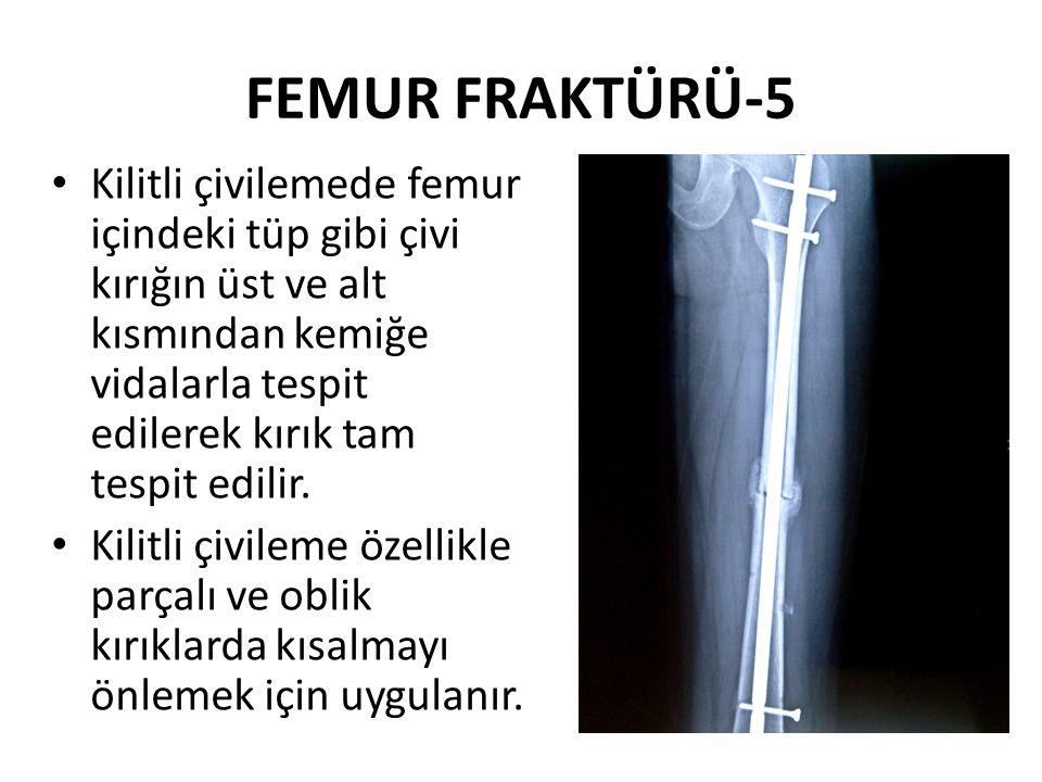 FEMUR FRAKTÜRÜ-5