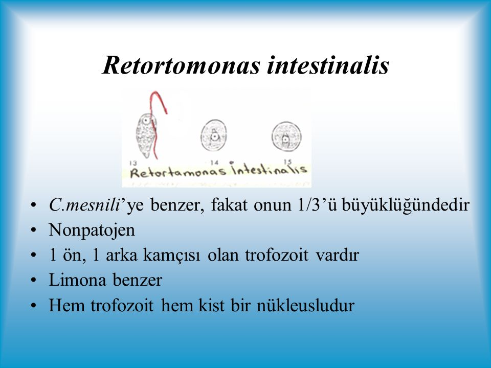 Retortomonas intestinalis