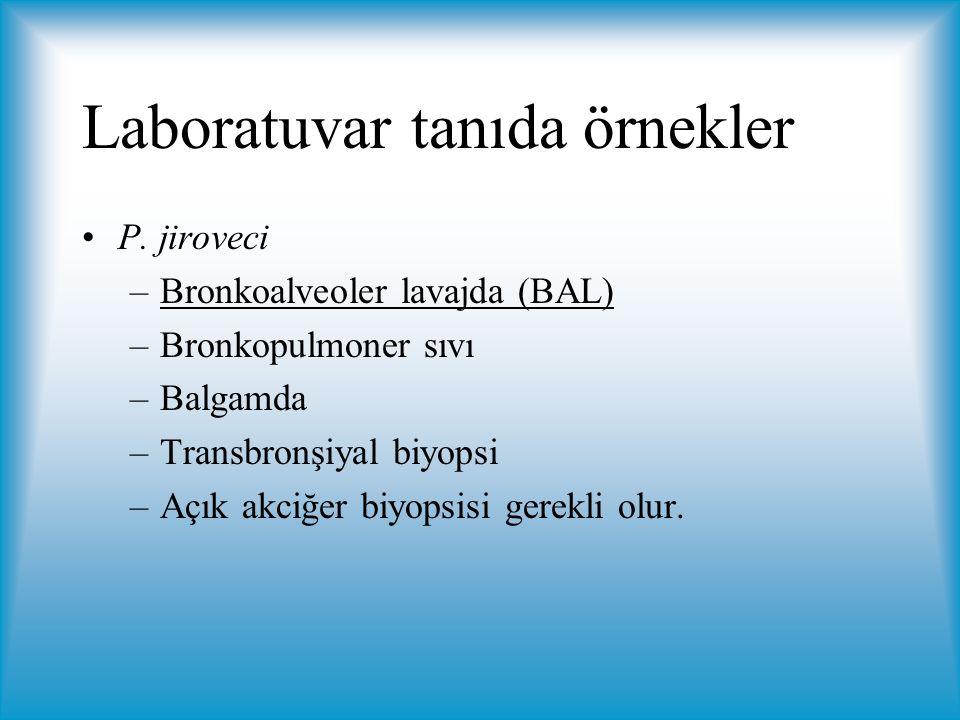 Laboratuvar tanıda örnekler