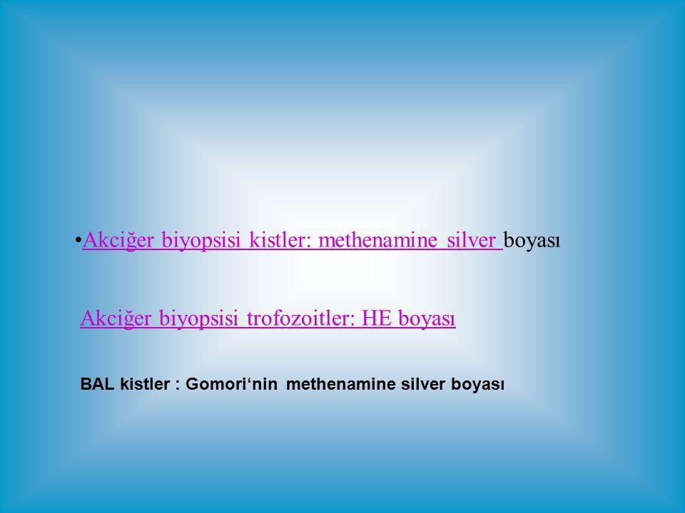 Akciğer biyopsisi kistler: methenamine silver boyası