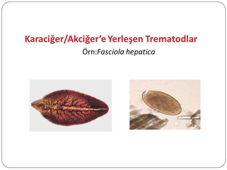 Örn:Fasciola hepatica