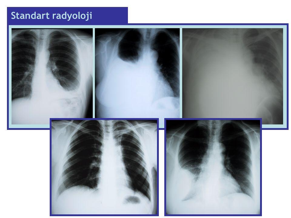 Standart radyoloji