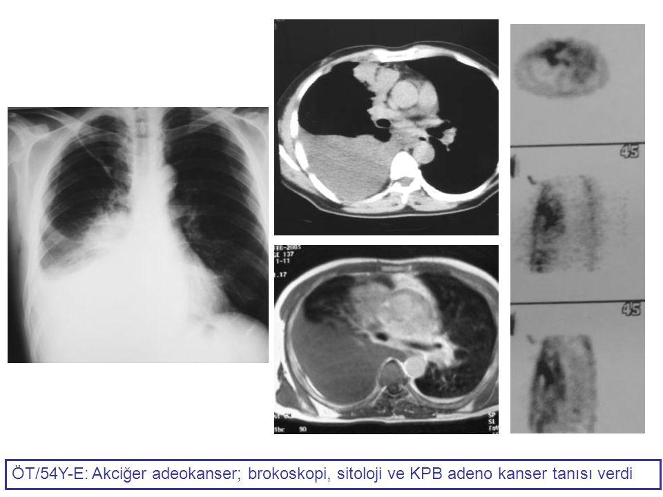 ÖT/54Y-E: Akciğer adeokanser; brokoskopi, sitoloji ve KPB adeno kanser tanısı verdi