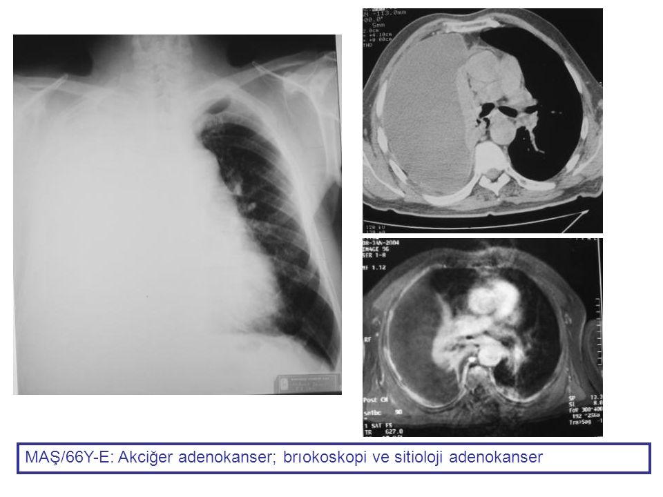 MAŞ/66Y-E: Akciğer adenokanser; brıokoskopi ve sitioloji adenokanser