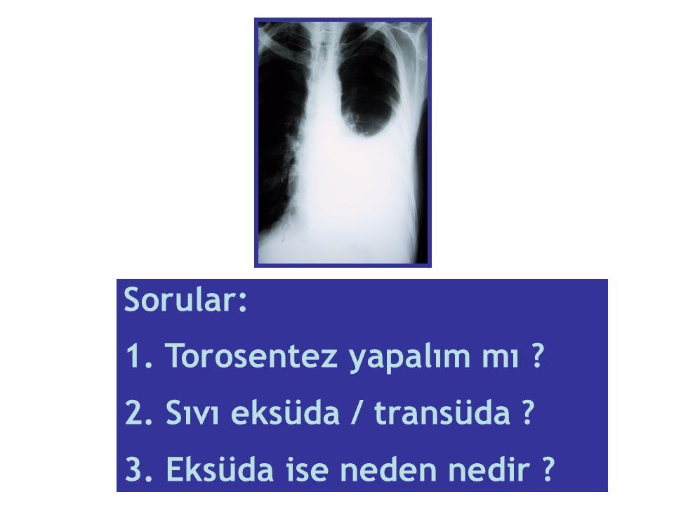 Sorular: 1. Torosentez yapalım mı 2. Sıvı eksüda / transüda 3. Eksüda ise neden nedir