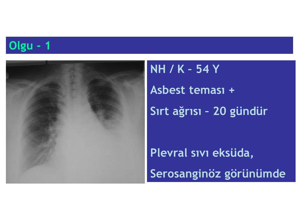 Olgu - 1 NH / K – 54 Y. Asbest teması + Sırt ağrısı – 20 gündür.