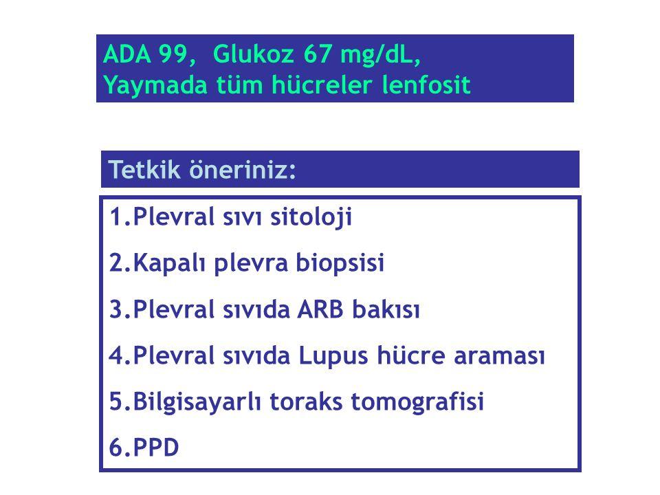 ADA 99, Glukoz 67 mg/dL, Yaymada tüm hücreler lenfosit. Tetkik öneriniz: Plevral sıvı sitoloji. Kapalı plevra biopsisi.