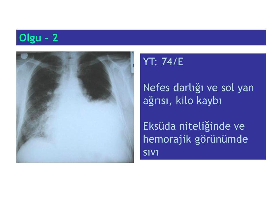 Olgu - 2 YT: 74/E. Nefes darlığı ve sol yan ağrısı, kilo kaybı.