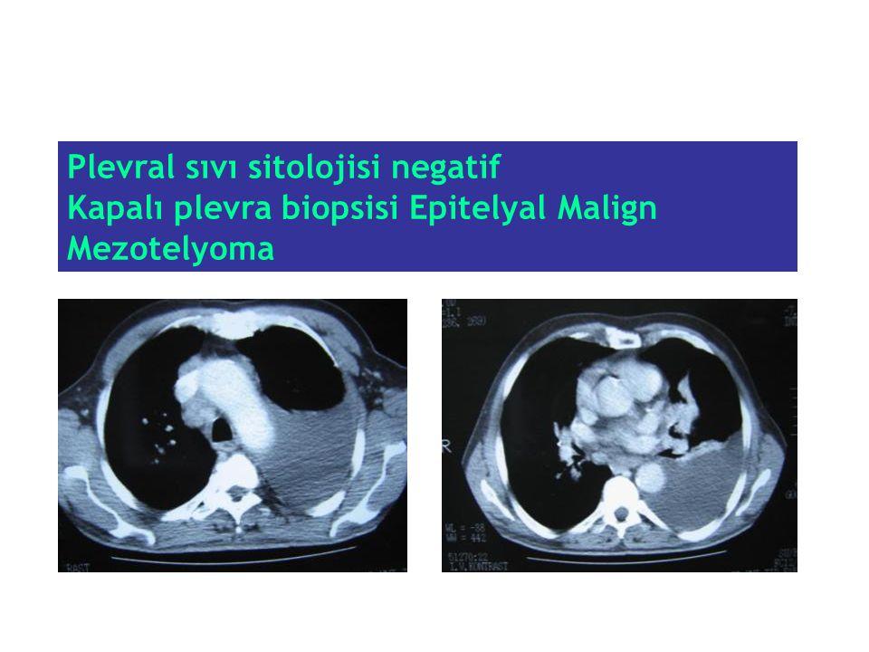 Plevral sıvı sitolojisi negatif