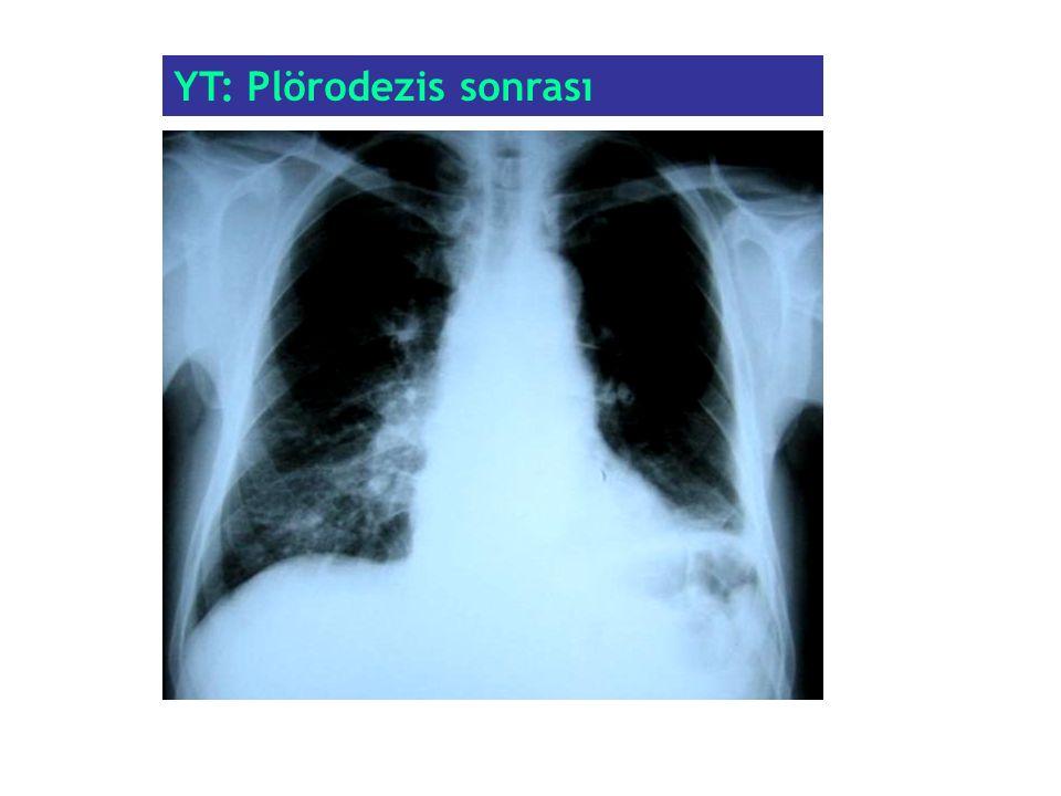 YT: Plörodezis sonrası