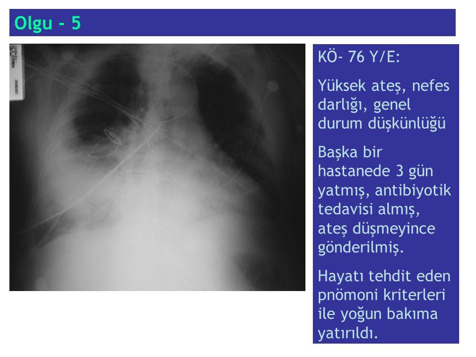 Olgu - 5 KÖ- 76 Y/E: Yüksek ateş, nefes darlığı, genel durum düşkünlüğü.