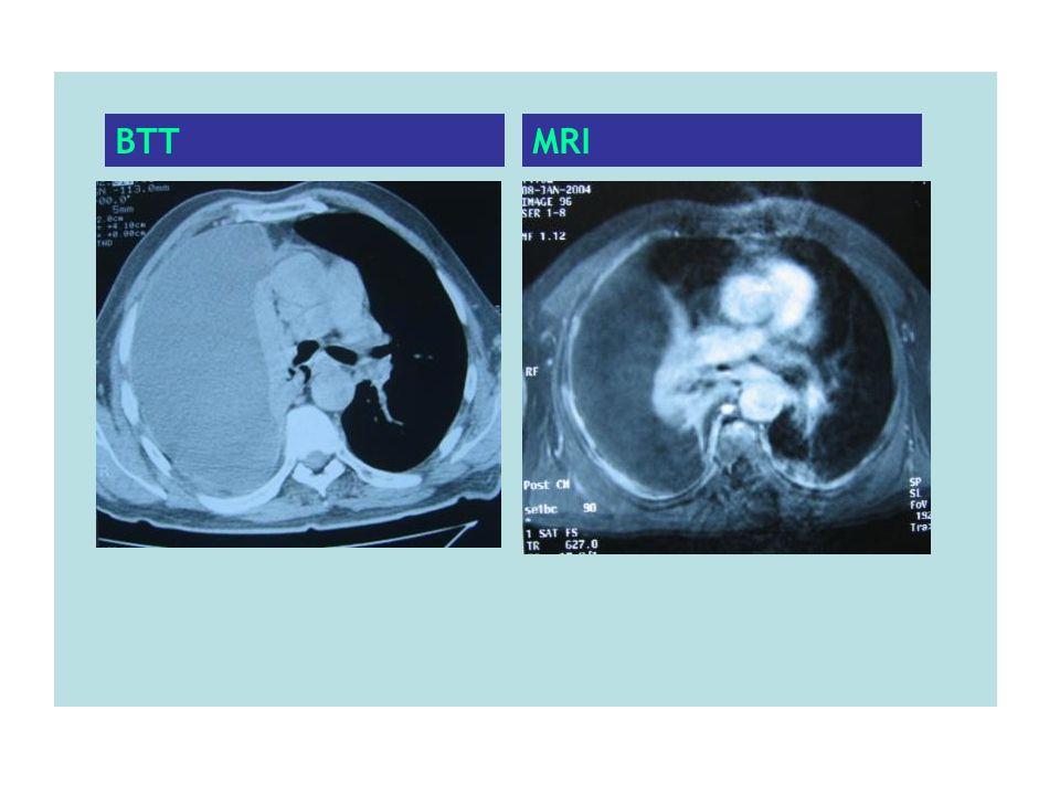 BTT MRI