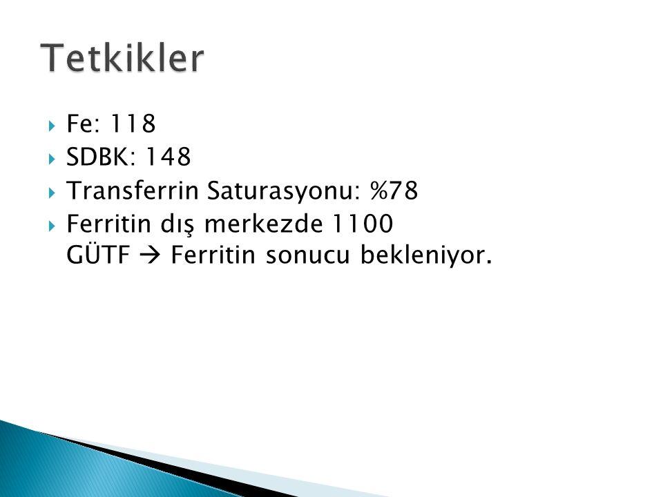 Tetkikler Fe: 118 SDBK: 148 Transferrin Saturasyonu: %78