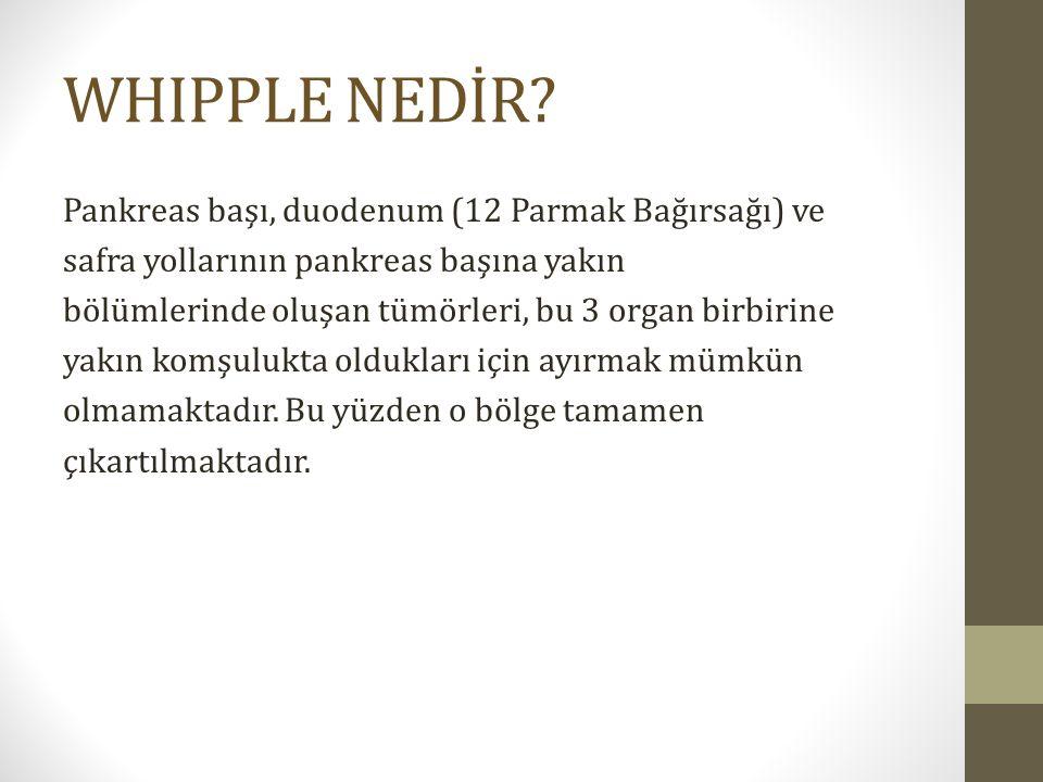 WHIPPLE NEDİR