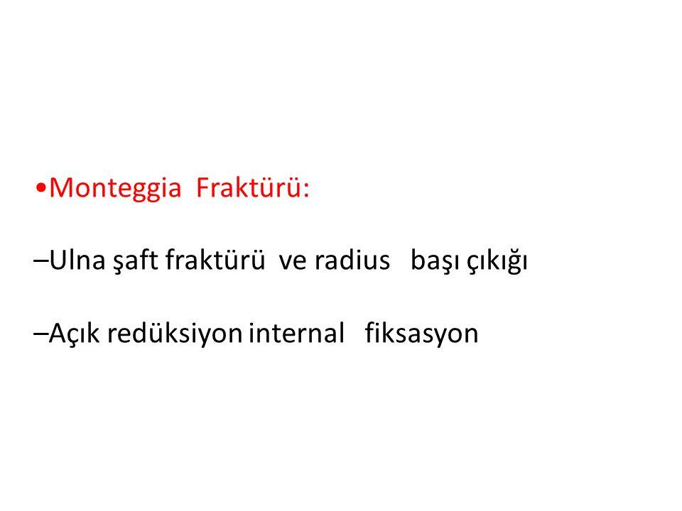 •Monteggia Fraktürü: –Ulna şaft fraktürü ve radius başı çıkığı.
