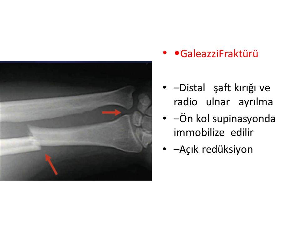 •GaleazziFraktürü –Distal şaft kırığı ve radio ulnar ayrılma