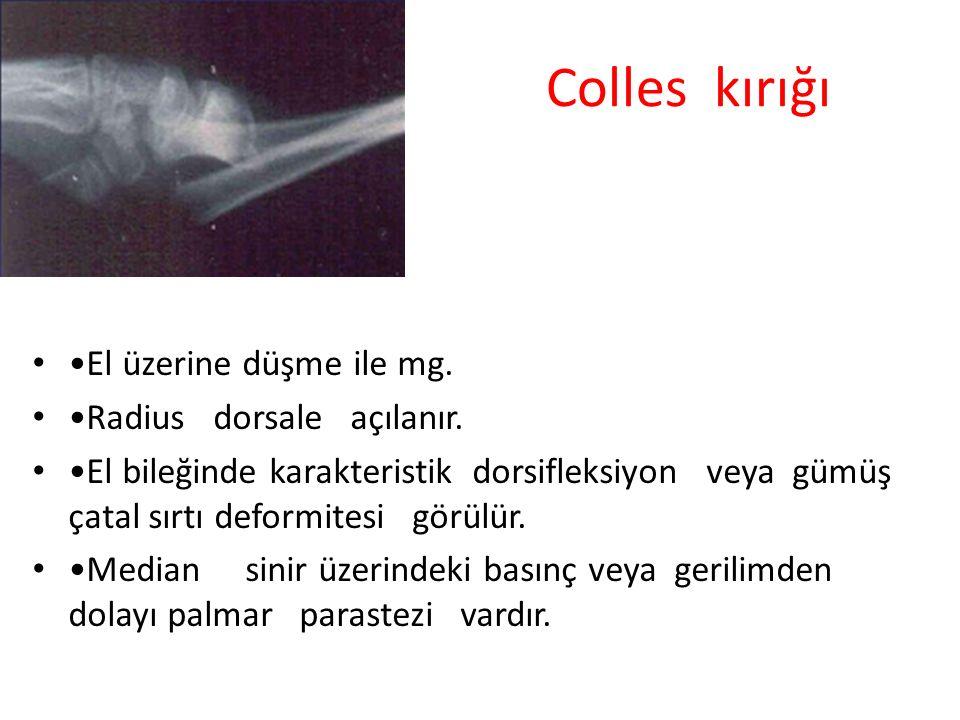 Colles kırığı •El üzerine düşme ile mg. •Radius dorsale açılanır.